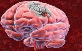 Aprenda a reconhecer quais são os sintomas do AVC
